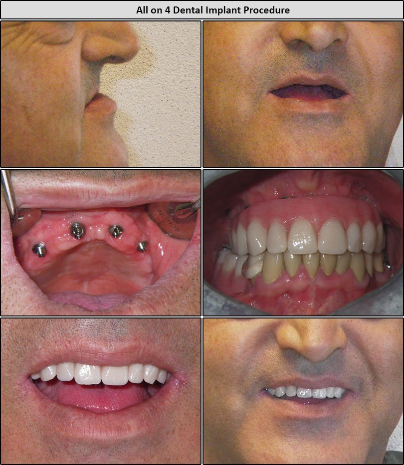 Before & After All On 4 Dental Implants